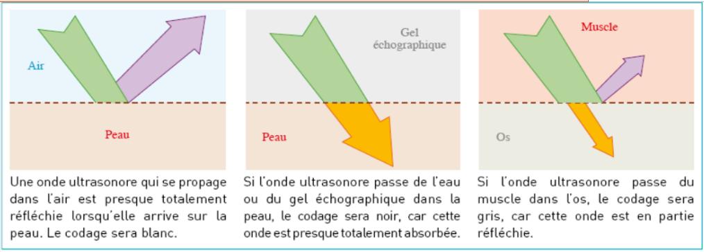 EchographieSchem1.png